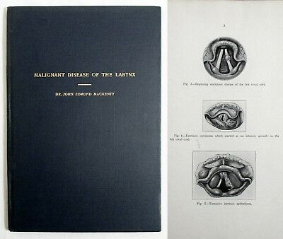 RARE Antique Medical 1934 MALIGNANT DISEASE OF THE LARYNX Throat Cancer MACKENTY