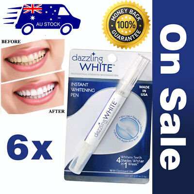 Teeth Whitening kit Cleaning system Oral Dental Pen Gel White Tooth Smile