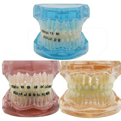 Dental Orthodontic Demo Model Lingual Brackets Ceramic Metal Typodont Teeth