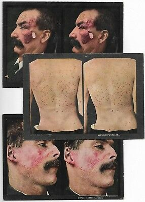 3 Antique 1910 MEDICAL ODDITIES Freak Skin Disease Deformities STEREOVIEW Cards