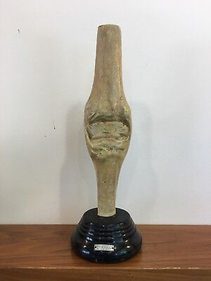 Anatomical Medical Model Knee Plaster Hand Painted Early Antique