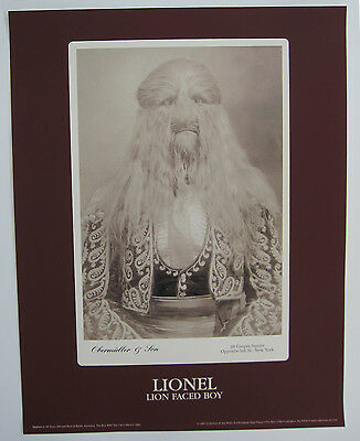 Lionel the Lion Faced Boy - Freak Show Poster - Obermuller & Son Cabinet Card