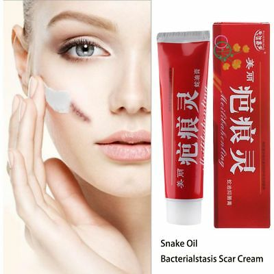 Stretch Marks Repair Snake Essence Ointment Acne Treatment Scar Remove Cream