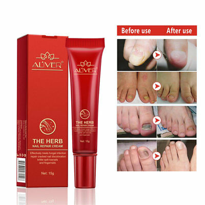 Anti Fungal Nail Treatment Cream Toe Finger Nail Fungus Infection Treatment 15ml
