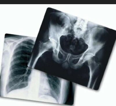Silver Recovery- 5 lbs. Exposed X-Ray Film (Free Shipping)