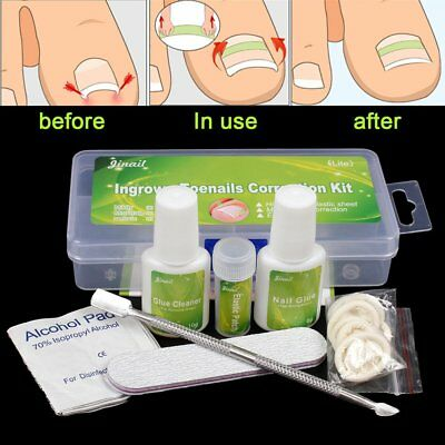 Ingrown Toenail Straightening Clip Curved BS Brace Patch Correction Tool Kit US