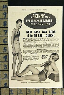 1934 Ironized Yeast Weight Gain Diet Fad Medical Cure Health Vintage Ad  Zd66