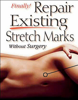 Deluxe Stretch Mark Treatment Kit  - Fastest Way to Remove or Reduce them NOW!