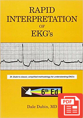 Rapid Interpretation of EKG's 6th Edition By Dale Dubin [PDF/EB00K]