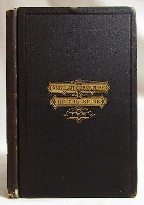 Antique 1872 ANGULAR CURVATURE OF THE SPINE Medical LEE Orthopedic Medicine RARE