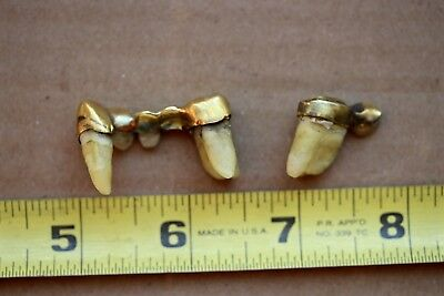 Vintage 22 K Dental Gold. Dentures Recoverable Scrap Or Collectible. C More Gold