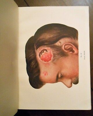 Rare Antique Medical Book Over 100 years old Colored Plates Diseases Surgery