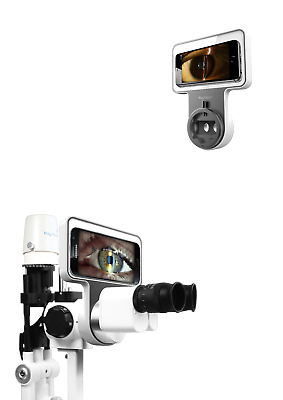 Phonto Imaging Optic System Apple Slit lamp Adapter Android Smart Phone Adaptor