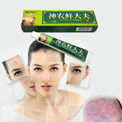 Chinese Natural Herbal Medicine Treatment Psoriasis Anti Bacteria Ointment