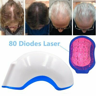 Laser Hair Regrowth Helmet Hair Loss Treatment Therapy Helmet 80 Diodes Alopecia