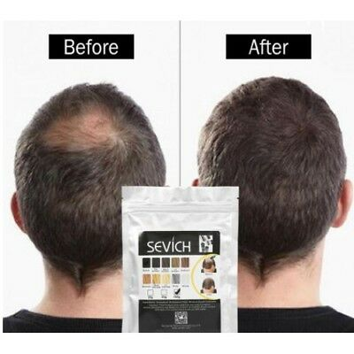 Sevich Hair Fibres 100g Bulk Refill Keratin Building Thickening Hair Loss Fibers