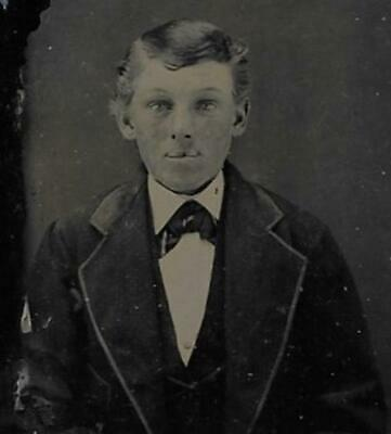 Tintype Photo #T1036 Young Man W/ Tinted Cheeks & Full Lips Posing In Suit