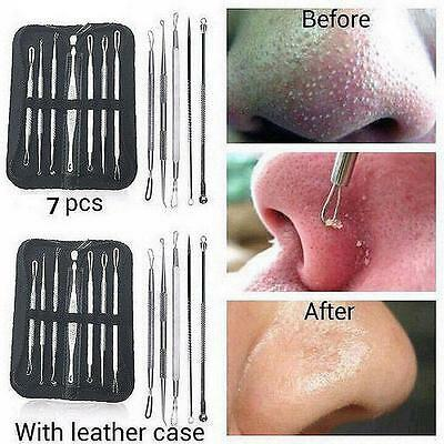 7PCS  Blackhead Whitehead Remover Tool Kit Blemish Acne Pimple Extractor