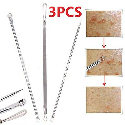 Blackhead Facial Acne Spot Pimple Whitehead Remover Extractor Comedone Tool Set