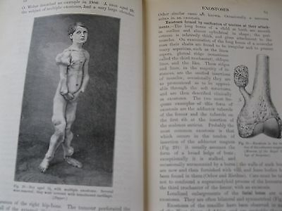 Rare 1922 Antique Medical BookTumours Innocent and Malignant 383wood engraving i