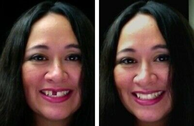 Temptooth Missing Tooth Replacement Temporary Tooth Loss 200,000+ sold worldwide