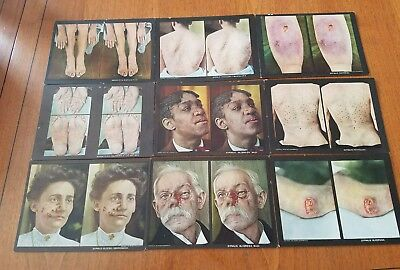 Huge Lot 84  1910 Diseases of the Skin Stereoviews Dr Rainforth Medical Oddity