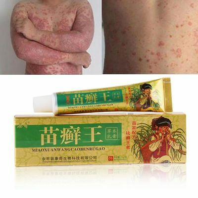 Itching Relief Herbal Formula Psoriasis Treatment Eczema Pruritus Dermatitis