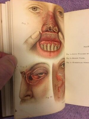 Malcolm Morris DISEASES OF THE SKIN - 1st ed. (1894) RARE & EARLY w/COLOR PLATES