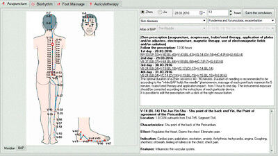 "Vedapulse Professional Extension Software ""acupuncture"" English Version"