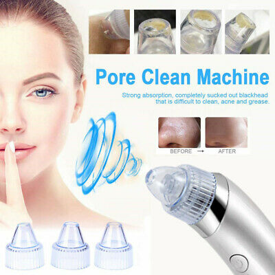 PRO Blackhead Remover Vacuum Suction Facial Pore Cleaner Electric Beauty Care ZX