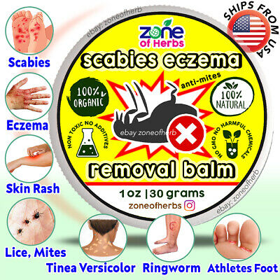 Scabies Eczema Natural Cream Ointment Treatment Medication Antifungal 30g SALE!