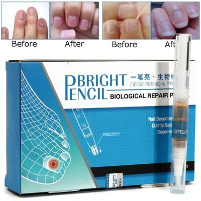 BRIGHT PENCIL TOE Nail Fungus Cure Anti Fungal Nail Treatment ...
