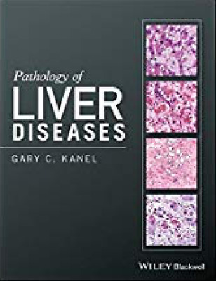 Pathology of Liver Diseases (PDF)