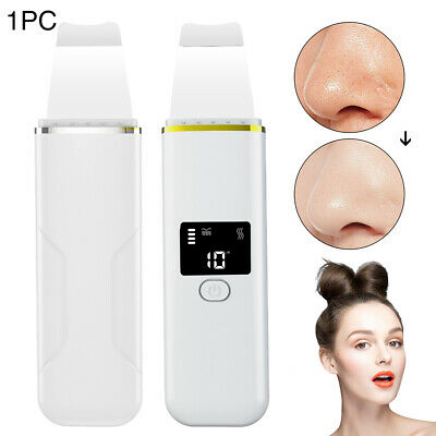 Washing Tool Peel Machine Skin Care Ultrasonic Cleaning Home Blackhead Remover