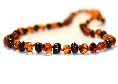 Amber Necklace - Cherry & Butterscotch Amber