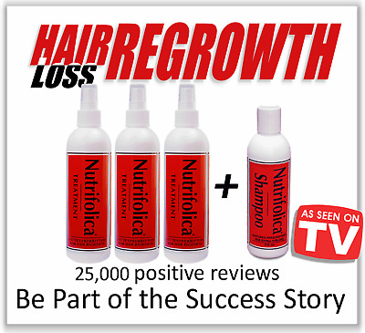 6 Month Nutrifolica Treatment Hair Loss Regrowth Growth Dht Receding Hairline