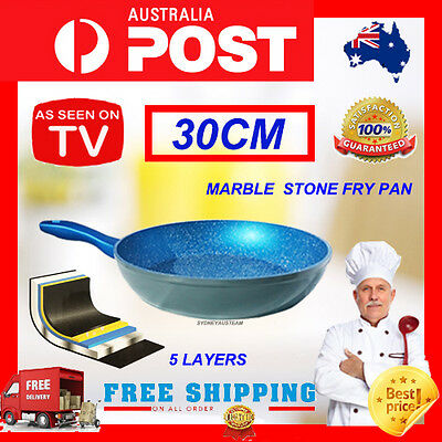 Fry Pan 30Cm Blue Stone Marble Coated Non Stick Cookware Induction Flavor