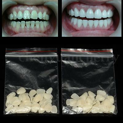 100Pcs Dental Ultra-Thin Whitening Veneers Resin Teeth Upper Anterior Shade USA