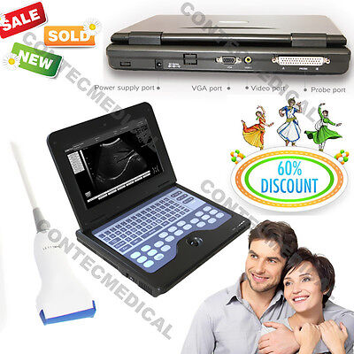 Promotion Portable Laptop Ultrasound Scanner Machine with Human 7.5 Linear Probe