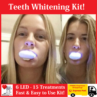 18% Carbamide Peroxide Home Teeth Whitening Kit with 6 LED Activation Mini Light