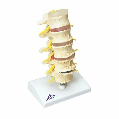 3b Scientific A795 Stages Of Disc Prolapse And Vertebral Degeneration Model, 8.