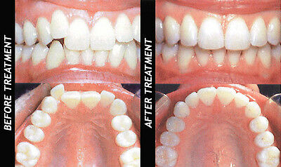 A retainer to correct orthodontic problems and close gap teeth (medical plastic)