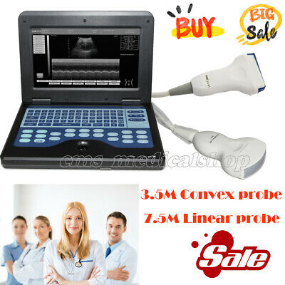 Laptop Ultrasound Scanner Machine with Convex Probe and linear probe,2 probes