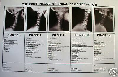 Chiropractic phases of spinal degeneration poster