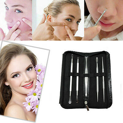 5PCS Stainless Blackhead Acne Comedone Pimple Blemish Extractor Remover Tool Kit