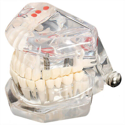 Tooth model model dental care model denture dentist Dental Demo K67 PK