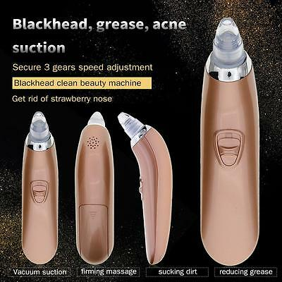 Electric Face Ance Blackhead Removal Pore Cleaner Vacuum Suction Skin Care UK HY