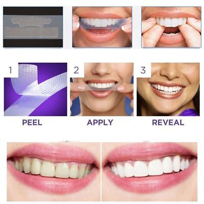28 Professional Strength Teeth Whitening Strips Enamel Safe