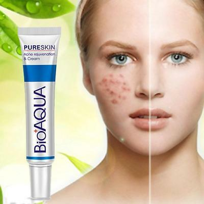 30g BIOAQUA Face Skin Care Acne Treatment Removal Cream Spots Scar Blemish`Marks