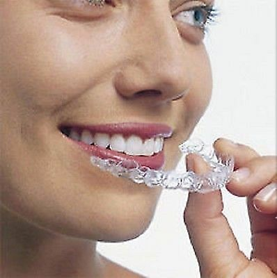 Dental Essix Retainer orthodontic custom fit UPPER ONLY